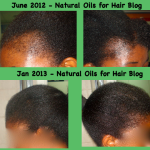 Regrow Bald Spots with Jamaican Black Castor Oil