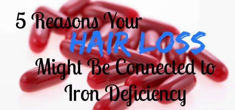 5-reasons-your-hair-loss-might-be-iron-deficiency
