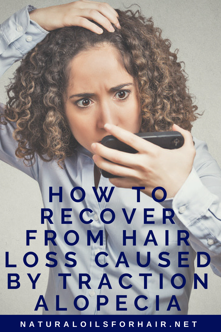 How to Recover from Hair Loss Caused by Traction Alopecia