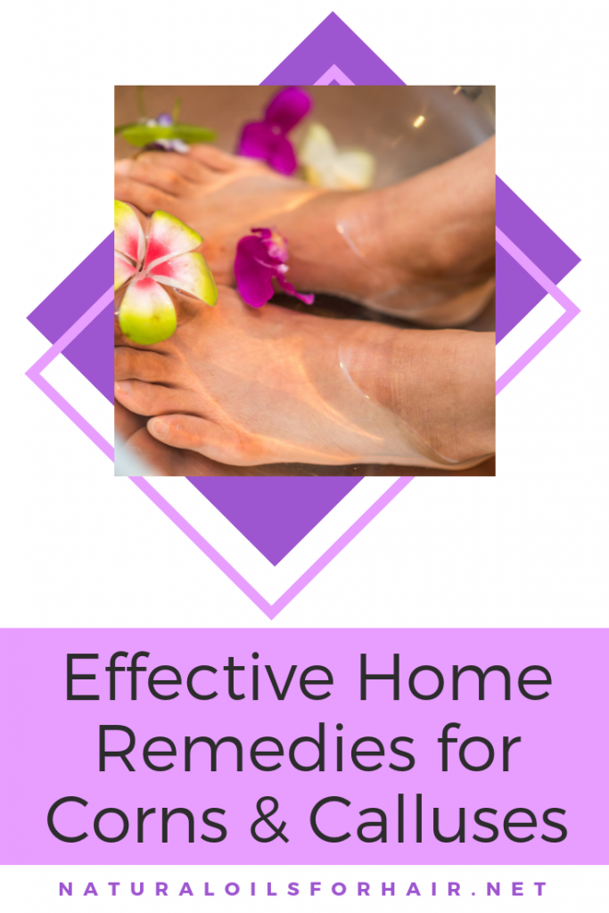 Effective Home Remedies for Corns and Calluses