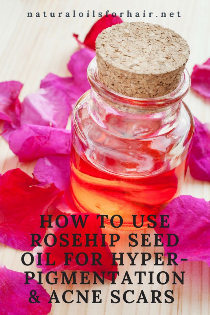 How to use Rosehip Seed Oil for Hyperpigmentation and Acne Scars